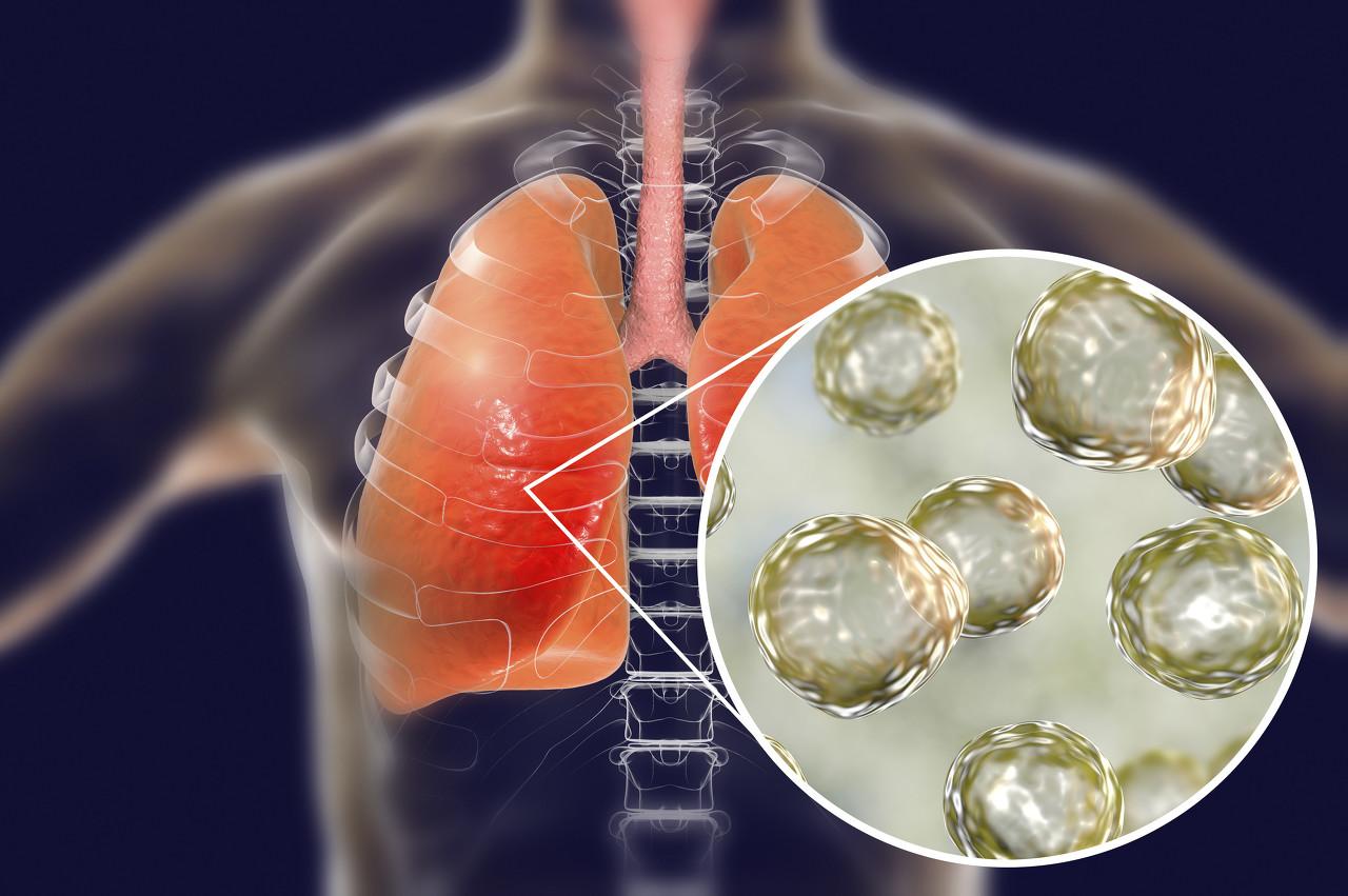 泰国出现第2起武汉肺炎病例,患者为74岁中国籍女性